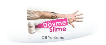 İzmir'de Dövme Silme   Lazer İle Dövme Silme